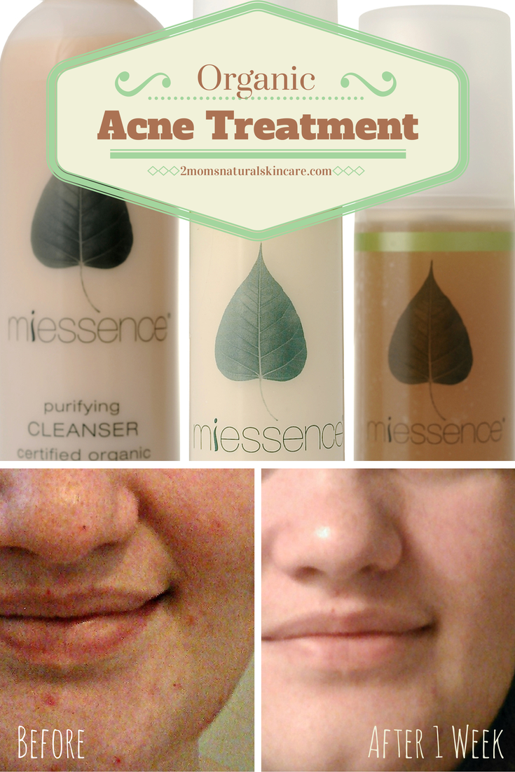 Organic Acne Treatment | http://2momsnaturalskincare.com/